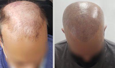 micropigmetation coiffure jafrate